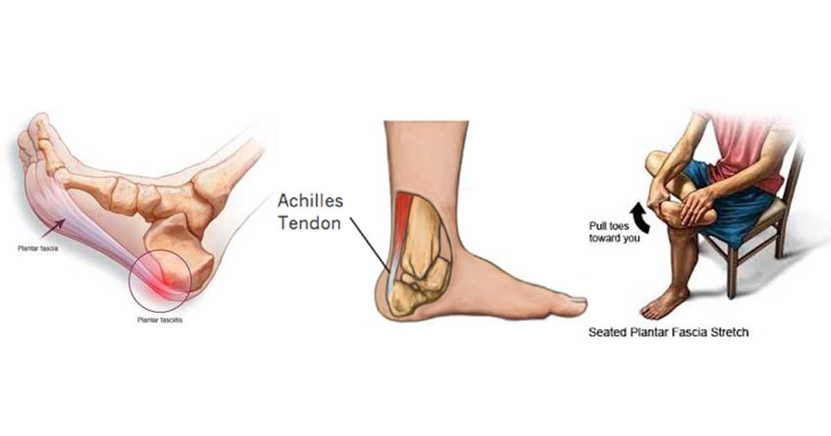 Tips to help heal the heel